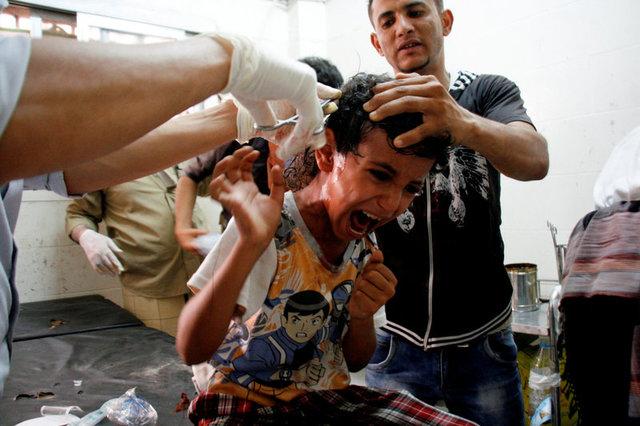 Епідемія холери в Ємені - кількість хворих вже більше 100 тисяч