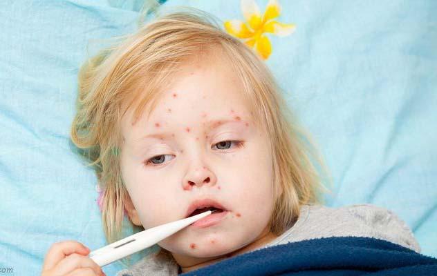 Заболеваемость корью увеличилась в 2-х областях государства Украины